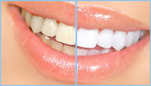 before/after whitening cosmetic